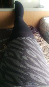 5. Tag post OP gestern den ganzen Tag Ferrow Wrap getragen und alles wieder normal
